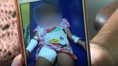 Viral Anak Yatim Piatu Disiram Air Panas dan Diperlakukan Seperti Pembantu Oleh Ibu Angkatnya